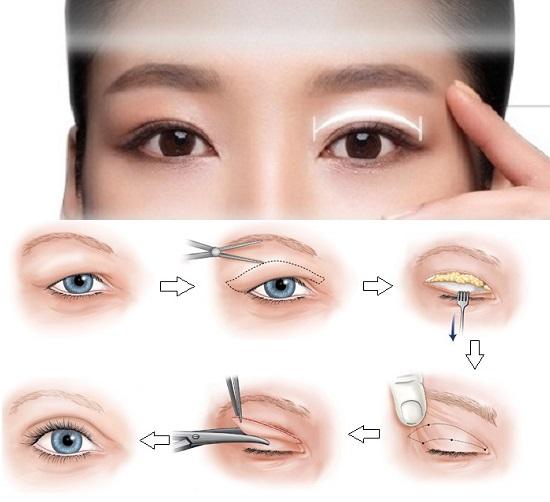 cắt mí có ảnh hưởng đến thị lực không