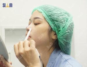 nâng mũi cấu trúc SIAM PCN