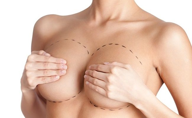 cấy mỡ ngực túi độn
