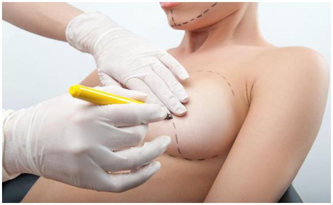 hậu quả nâng ngực